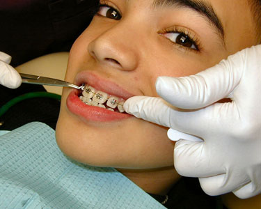 Tampa: Orthodontists - Fun 4 Tampa Kids